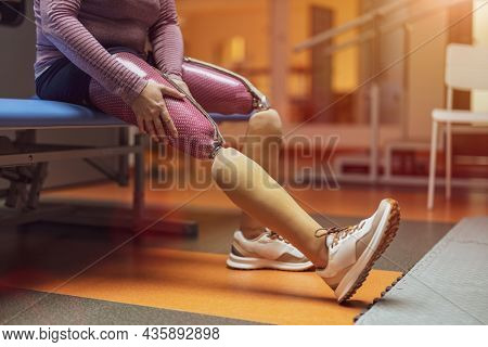 Close up of a woman with prosthetic legs
