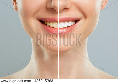 Woman Teeth Before And After Whitening. Over White Background. Dental Clinic Patient. Image Symboliz