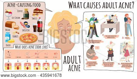 Acne Causes. Medical Banner With Dermatology Infographics. Girl Problem Skin With Pimples, Vector Il