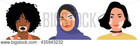 A Set Of Women With Vitiligo Of Different Nationalities And Appearances. Flat Vector Illustration. S