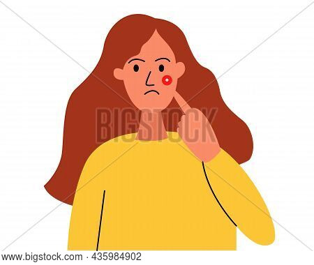 A Teenage Girl With A Pimple On Her Cheek. The Girl Points To A Pimple, A Pimple On Her Face. Proble