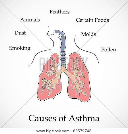 Illustration of human lungs and causes of Asthma on grey background.