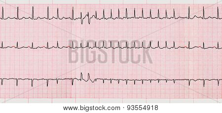 Ecg With Supraventricular Arrhythmias And Short Paroxysm Of Atrial Fibrillation