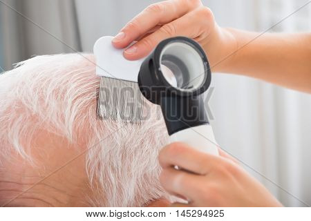 Close-up Of Doctor With Comb And Dermatoscope Doing Treatment Of Senior Patient's Hair