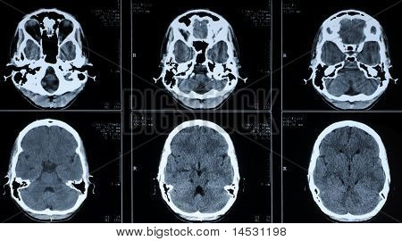 Ct Photography Of Human Brain