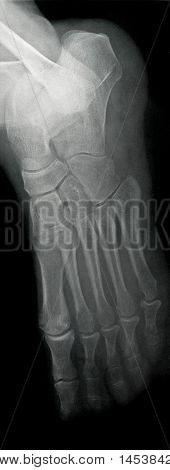 Lateral Foot X-ray