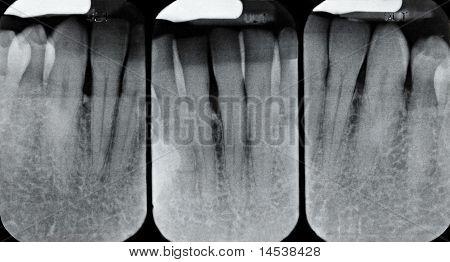 Lower Periodontal X-rays