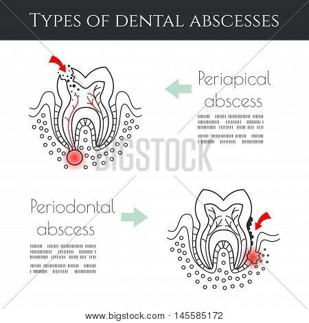 Types of dental abscessesDental infographic.. All objects are conveniently grouped and are easily editable.