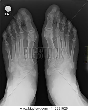 X-ray foot, internal radiology and orthopedic in negative