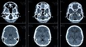 computer tomography CT photo of human brain poster