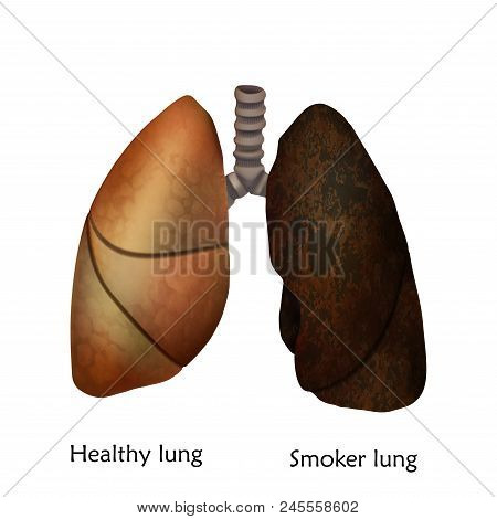 Human Lungs. Healthy Lung And Smoker Lung. Anatomy Vector Illustration. White Background.