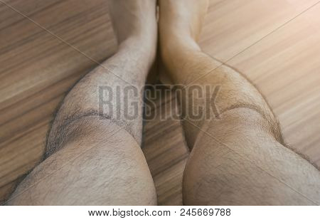 Asian Man Leg Bandy-legged Shape Of The Legs,selective Focus