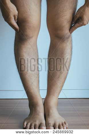 Asian Man Leg Bandy-legged Shape Of The Legs