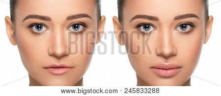 Female Face, Present Before And After Lips Filler Injections. Lip Augmentation. Thin Ugly Lips Befor
