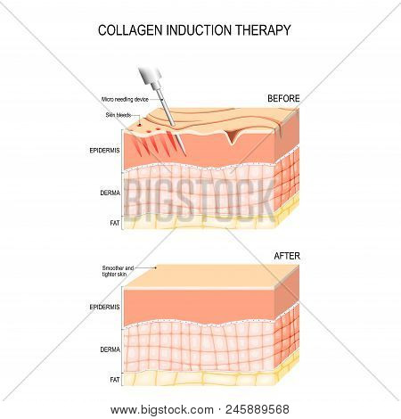 poster of Collagen induction therapy (microneedling) is a surgical for remove wrinkles, scars, stretch, marks, pigmentation. skin needling procedure, repeatedly puncturing the skin with tiny, sterile needles (microneedling the skin).