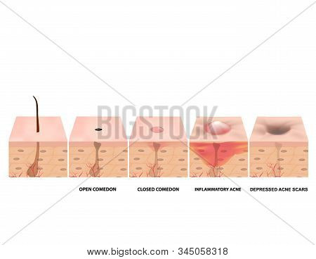 Treatment Of Open Comedones, Inflamed Acne, Acne Cysts. Sore Acne. Structure Of The Skin. Treatment