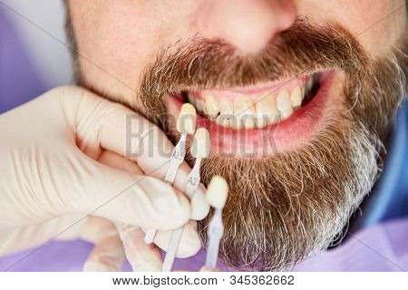 Adjustment of the tooth color of the patient during professional bleaching or teeth whitening