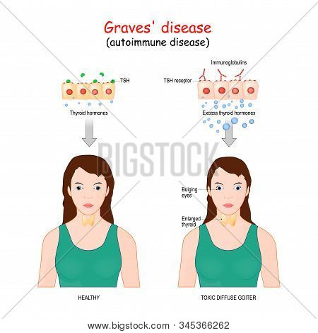 Graves' Disease. Toxic Diffuse Goiter Is An Autoimmune Disease That Affects The Thyroid