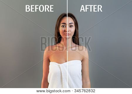 The Concept Of Sunburn. A Young Woman In A Bath Towel Poses On A Gray Background. Skin With And With