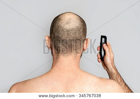 Male Alopecia. A Man With A Receding Hairline Is Holding An Electric Razor. Rear View. Shoulder-leng