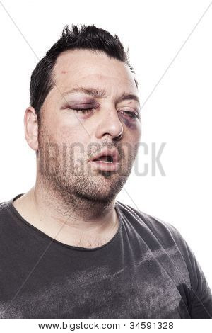 Black Eye Injury Accident Violence Isolated