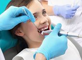 Treatment of the tooth, the dentist cleans loss poster