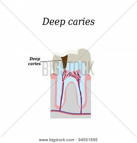 Deep tooth decay. Vector illustration on isolated background