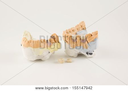 dental prosthesis manufacturing step in dental laboratories