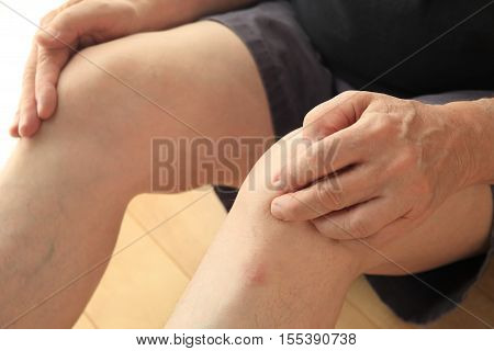 An older man sits on the floor with his hands on his painful knees.