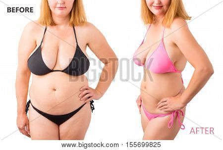 Woman in bikini posing before and after weight loss