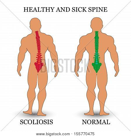 Healthy and diseased spine scoliosis and normal condition a medical training poster. Vector illustration.