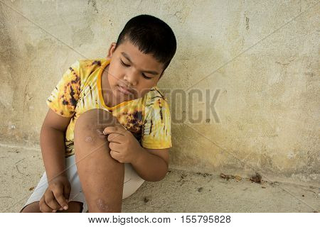 Little boy scratching the blisters scab on leg