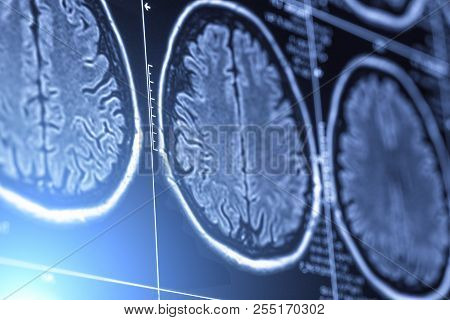 Abstract Image With Blue Light Effect Effect Of Mri Or Magnetic Resonance Image Of Head Or Scull And