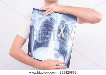 Oncological Lung Cancer Disease Concept. Guy Male Man Holding Medical Lung Body X-ray Photo With Pin