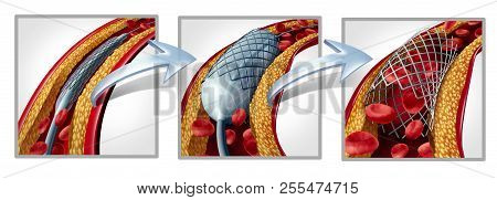 Coronary Stent And Angioplasty Concept As A Heart Disease Treatment Symbol Diagram With The Stages O