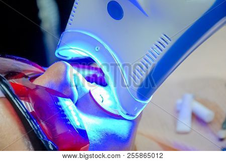 Adult Female Receiving Teeth Whitening Procedure.portrait Of A Female Patient At Dentist In The Clin