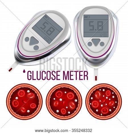 Glucose Meter And Sugar Level In Blood Vector. Hypoglycemia, Normal Glucose Level And Hyperglycemia,