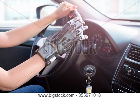 A Girl With A Prosthetic Arm Drives A Car. The Concept Of A Full Life For People With Disabilities.