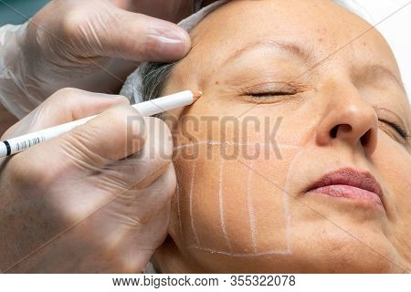 Hands Painting Facial Guidelines For Hifu Energy Treatment On Female Face.