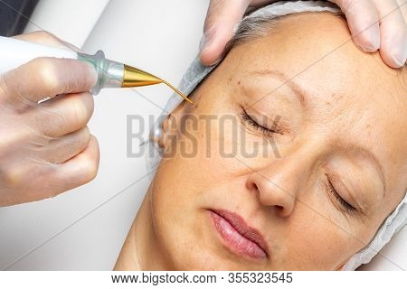 Macro Close Up Detail Of Laser Plasma Pen Removing Facial Wart On Middle Aged Woman.