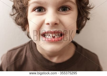 Charming Curly Boy Smiles Without Tooth On White Background. The Boy Lost The First Milk Tooth. Heal