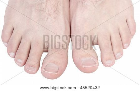 Toes.