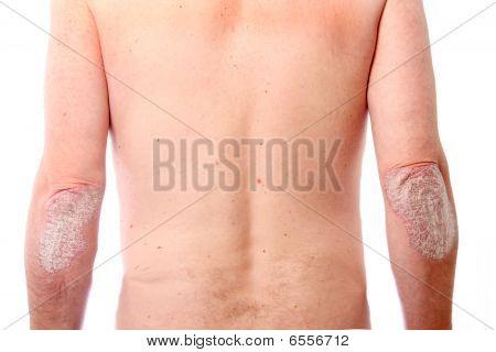 Psoriasis On Both Elbows