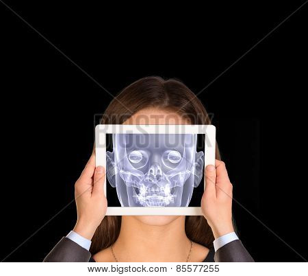 Hands holding tablet. On tablet screen x-ray image of head