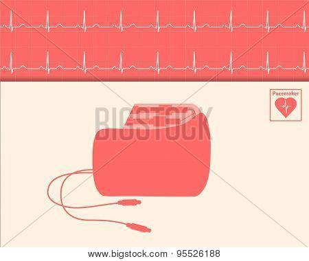 Red Silhouette Pacemaker And Cardiogram Background.