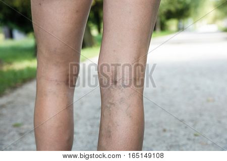 Painful varicose and spider veins on womans legs who is active and working out self-helping herself in overcoming the pain. Vascular disease varicose veins problems active life concept.
