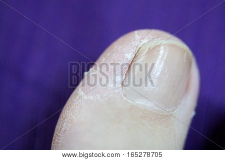 Isolated woman dry toe skin with purple background