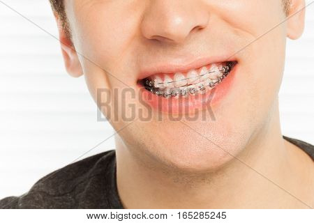 Close-up portrait of happy man's smile with orthodontic cases