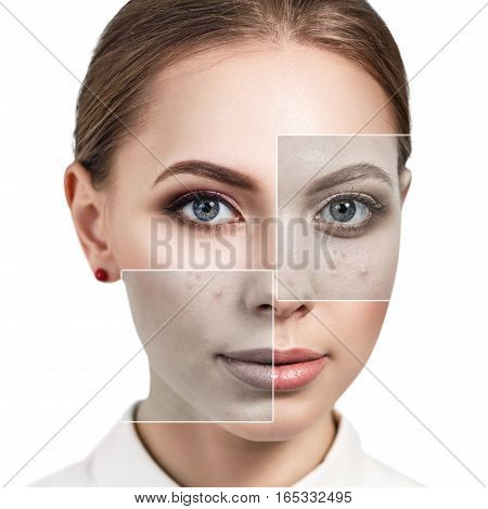 Collage parts of woman's face before and after treatment and makeup.
