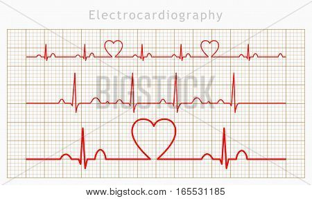 Vector Heart cardiogram charts set background (EPS)